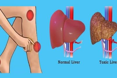 liver-1.jpg