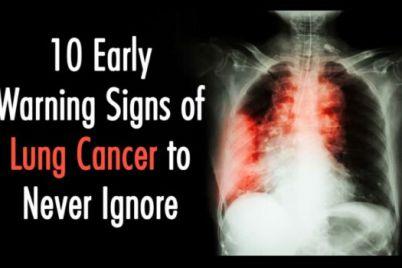 lung-1-1.jpeg