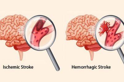 stroke-1-1.jpeg
