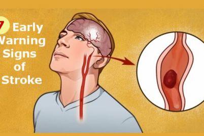 stroke-1.jpeg