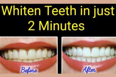 teeth-1.jpeg